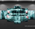 5-x-ray-picture for dentistry 100х200 см 40 у.е.